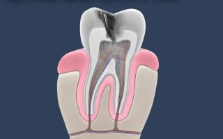 Curso de Especialização em Endodontia