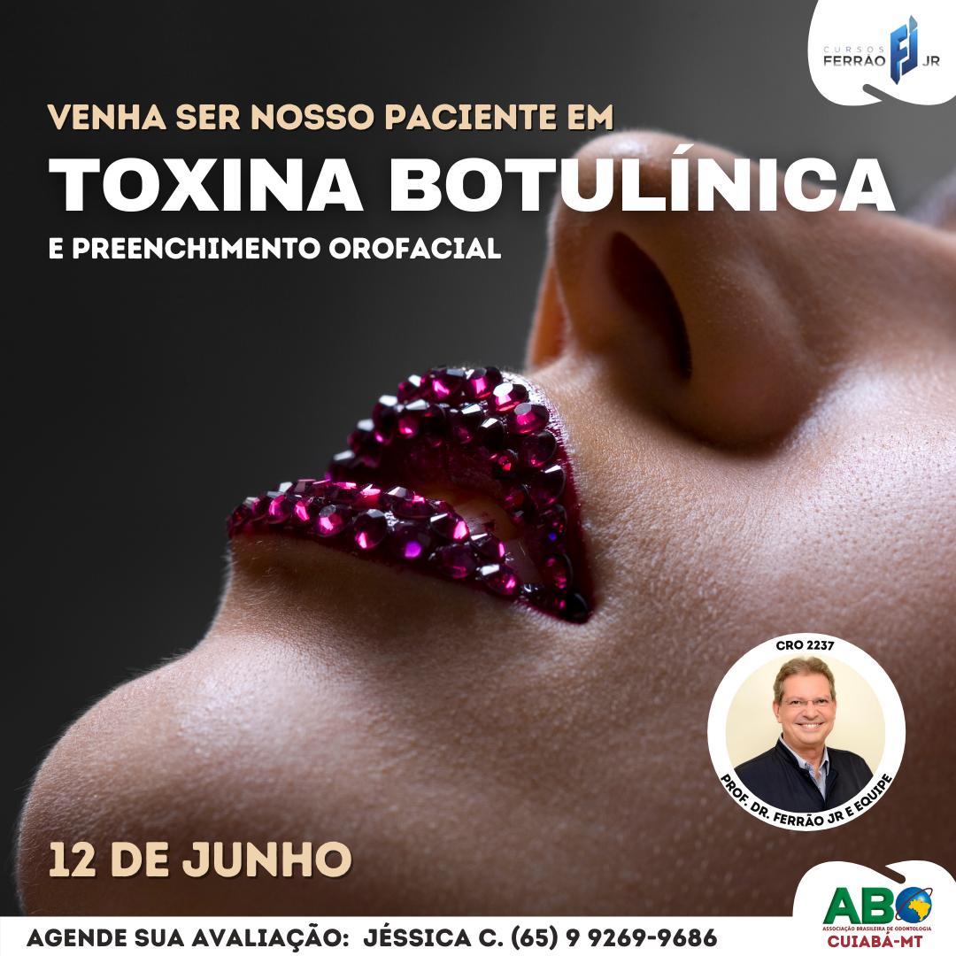 Toxina Botulínica Estética Funcional