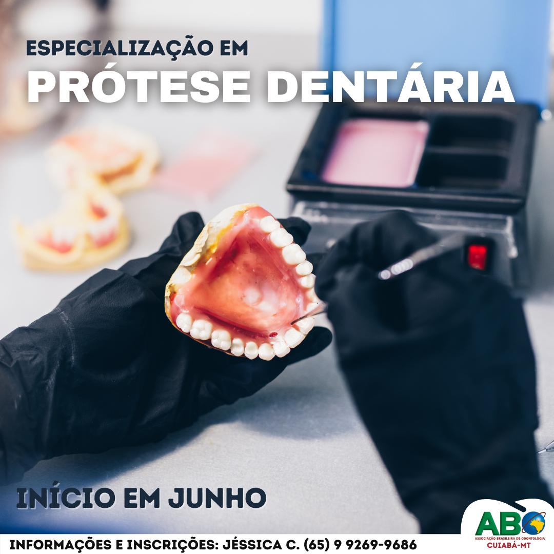Prótese Dentária com enfáse em Planejamento Digital